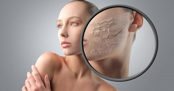 dry skin in winter