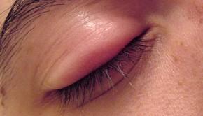 Stye in the eye
