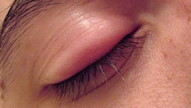 the metrognome get rid of that stye in your eye